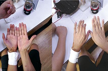 腕部肌腱神经血管损伤