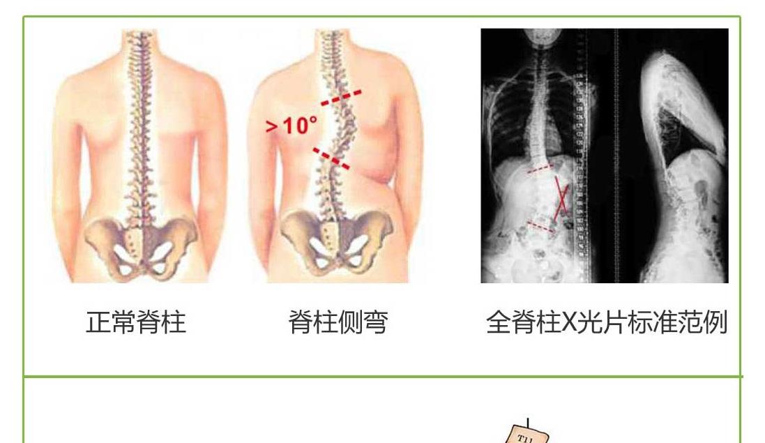 脊柱侧弯怎么治疗