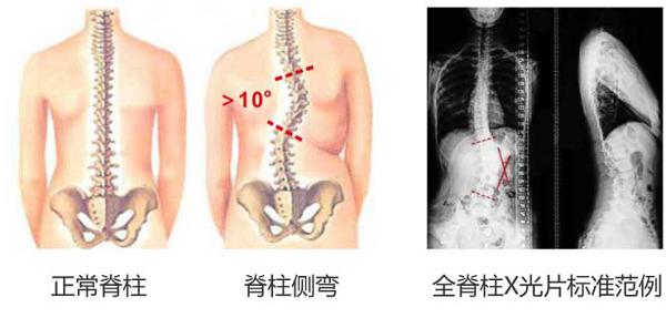长沙颈椎康复治疗